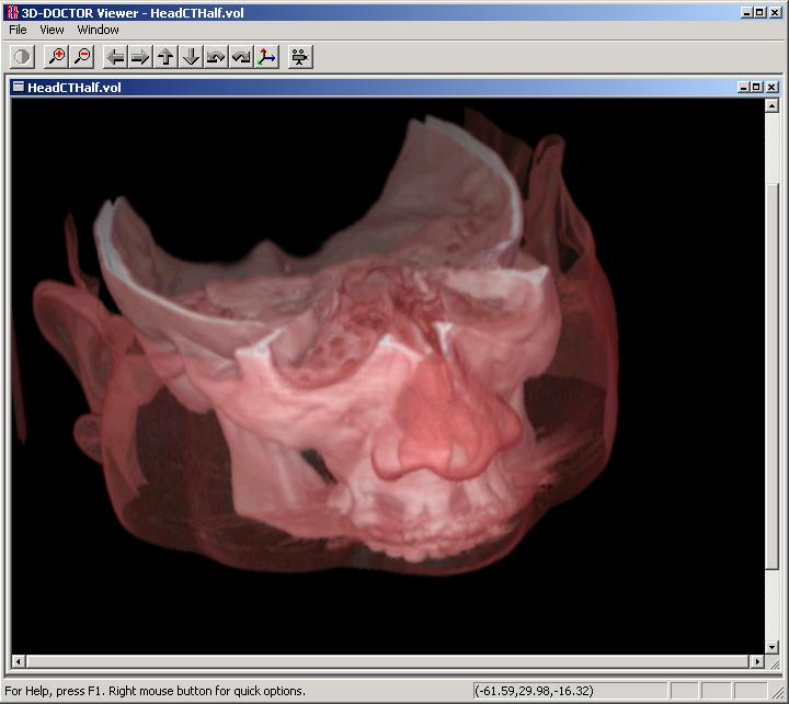 3D-DOCTOR, medical modeling, 3D medical imaging, Free 3D Viewer