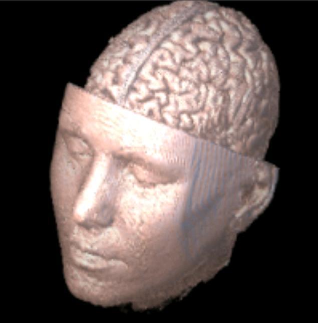 3D-DOCTOR, Medical Modeling, 3D Medical Imaging