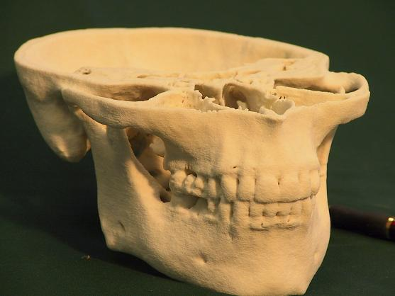 3d mesh model generated by 3d doctor 3d output from a 3d printer