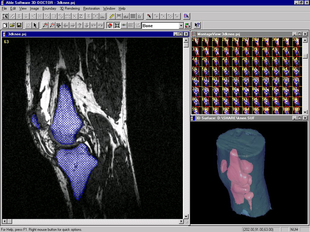 3d doctor medical modeling 3d medical imaging object boundaries are traced and their topological relationship are established figure 4 shows an example of texture based segmentation sciox Choice Image