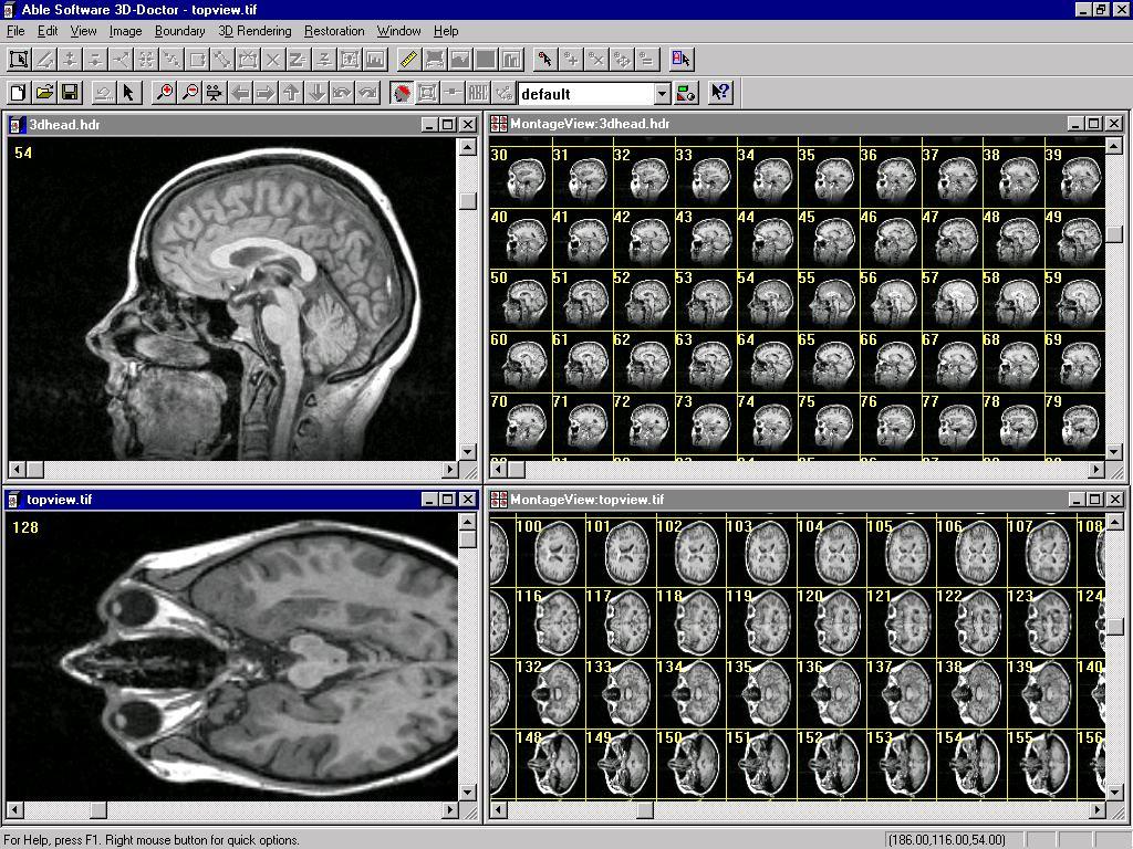 3d Doctor Medical Modeling 3d Medical Imaging