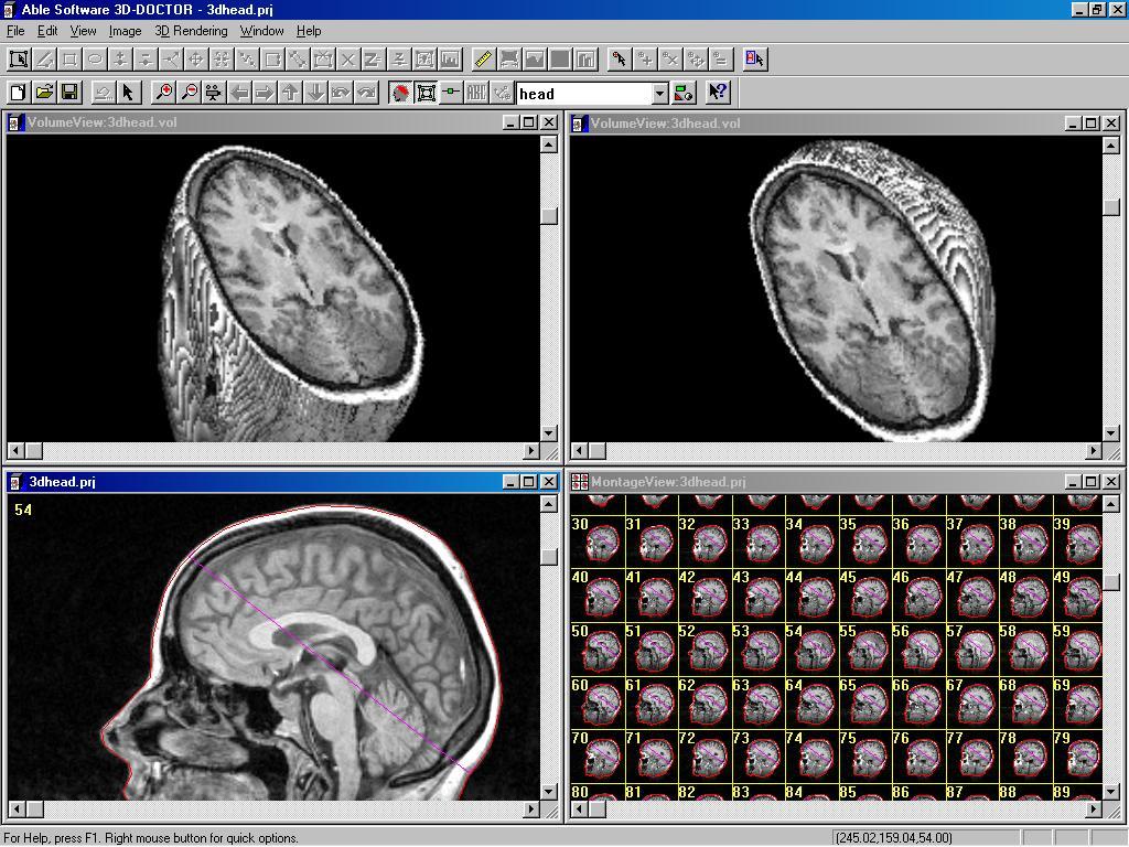 brain mri scan 3d -#main